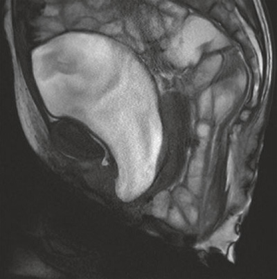 MRI showing a large sigmoidocele