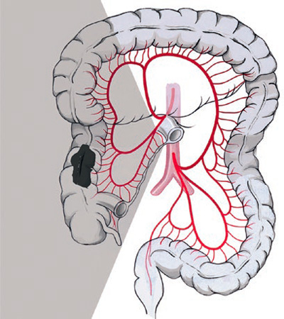 Diagram showing right-sided hemicolectomy with central ligation of the ileocolic artery and the right colonic artery