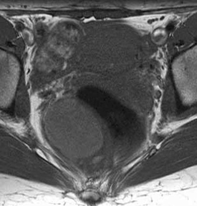 MRI scan image showing a tailgut cyst
