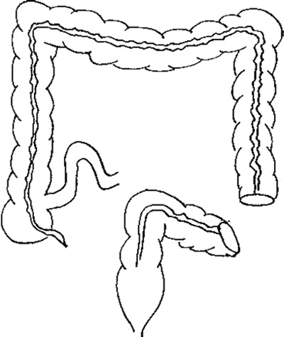 Diagram of a colostomy