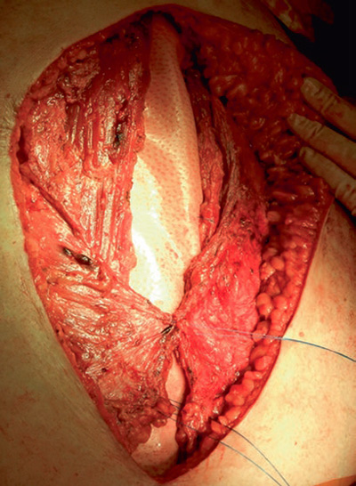 Photo showing placement of a biologic mesh during an open abdominal wall repair